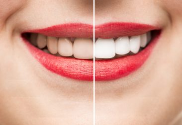 Teeth After and Before Whitening high quality studio shot